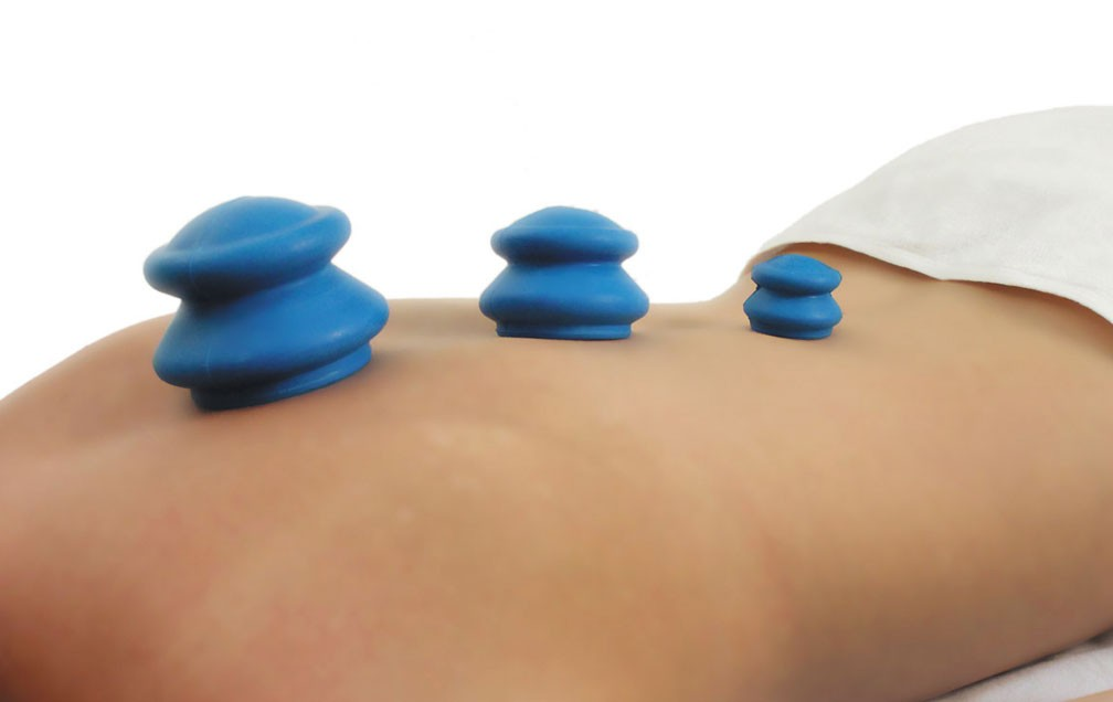 Acucups Natural Rubber Cupping Therapy Set 01